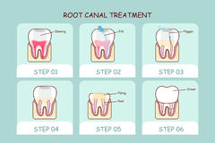 Cartoon tooth root canal treatment Royalty Free Stock Images