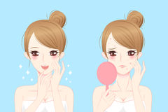 Cartoon woman with acne. Before and after Stock Photo