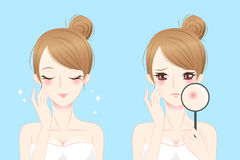 Cartoon woman with acne Stock Image