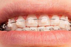 Cas orthodontiques en céramique et en métal sur des dents Photo stock