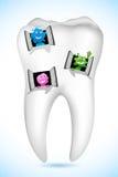 Casa del dente Immagini Stock