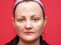 Casca da mulher da pele. fotografia de stock