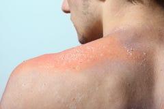 Casca da pele após a queimadura foto de stock