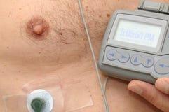 Cassa dell'uomo e un video di frequenza cardiaca fotografie stock libere da diritti