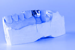 Cast metal dental crown. On artificial plaster model royalty free stock image
