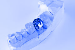 Cast metal dental crown. On artificial plaster model stock photography