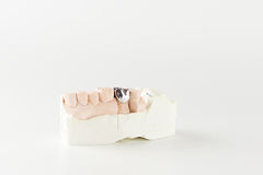 Cast metal dental crown. On artificial plaster model royalty free stock images