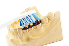 Casting of teeth model and toothbrush Royalty Free Stock Photo