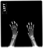 Cat's Paws. Radiograph of the paws of a cat Royalty Free Stock Photos