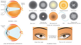 Cataract. Eye disease . The structure of the eye. A  is an clouding crystalline lens inside the eye. Eye s affected. Types of Royalty Free Stock Images