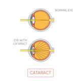 Cataract eye,  Royalty Free Stock Photo