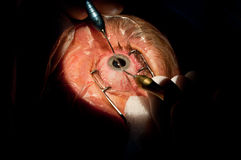 Cataract ophthalmologic surgery Stock Photo