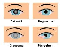 Cataract, Pinguecula, Glaucoma and Pterygium, eye care Stock Photography