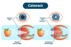 Cataract vector illustration diagram, anatomical scheme. A cataract is a clouding of the lens in the eye which leads to a decrease in vision royalty free illustration