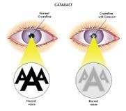 cataracte illustration de vecteur