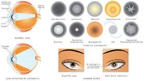 cataracte illustration libre de droits