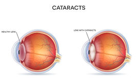 Cataracts Royalty Free Stock Images