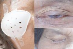 Cataratta della gente anziana durante le donne dell'Asia della gente dell'occhio 70 anni Immagine Stock Libera da Diritti