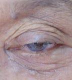 Cataratta della gente anziana durante le donne dell'Asia della gente dell'occhio 70 anni Fotografie Stock
