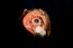Cataratta prima di ambulatorio oftalmologico Fotografie Stock Libere da Diritti