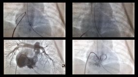 Cateterizzazione del cuore e delle navi nei raggi x video d archivio