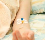 Catheter royalty-vrije stock foto's