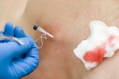 Catheter royalty-vrije stock foto