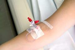 Catheter in het wapen royalty-vrije stock foto