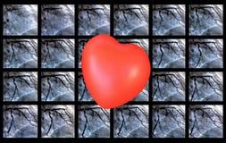 Catheteriseren Hartventriculografie en klein rood hart stock afbeelding