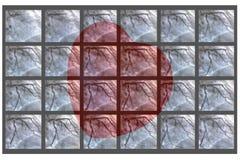 Catheteriseren Hartventriculografie en klein rood hart stock fotografie