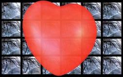 Catheteriseren Hartventriculografie en klein rood hart stock foto