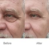 Wrinkle,forehead,skin,cheek,face,eyebrows,lifting royalty free stock photos