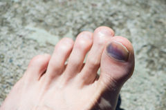Caucasian foot with blue big toenail Royalty Free Stock Images