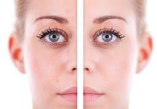 Caucasian kvinnas framsidahud, skönhetbegrepp före och efter Co arkivfoton