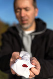 Caucasian man holding a bloody tissue Royalty Free Stock Photography