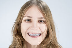 Caucasian Teenage Girl Showing Her Teeth Brackets. Posing Indoor Royalty Free Stock Photography