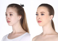 Caucasian Woman before make up hair do. no retouch, fresh face w. Caucasian Woman before after make up hair do. comparision no retouch, fresh face with acne then stock images