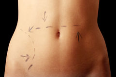 Caucasian woman's abdomen marked with lines Royalty Free Stock Photography