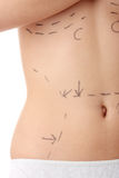 Caucasian woman's abdomen marked with lines Royalty Free Stock Images