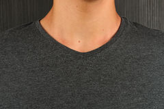 Caucasian young man in grey t-shirt with a birthmark on his neck Royalty Free Stock Images