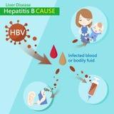 Causa de la hepatitis b ilustración del vector
