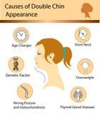 Causas de la barbilla doble libre illustration