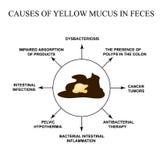 Causas del moco amarillo en heces enfermedades del aparato gastrointestinal Infograf?a Ejemplo del vector en aislado stock de ilustración