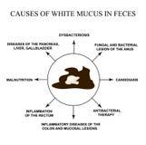 Causas del moco blanco en heces enfermedades del aparato gastrointestinal Infograf?a Ejemplo del vector en aislado stock de ilustración