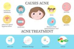 Cause dell'acne e diagramma di trattamento, illustrazione piana di vettore illustrazione di stock