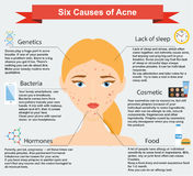 Causes of acne. Skin problems and diseases beauty infographics Royalty Free Stock Photo