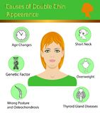 Causes of double chin, vector illustration diagram Royalty Free Stock Image