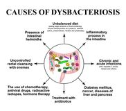 The causes of dysbiosis in the intestines. Colon. Bacteria pathogenic flora. Infographics. Vector. Illustration on isolated background royalty free illustration