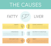 Causes of fatty liver Stock Photo