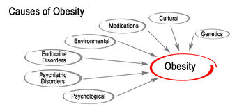 Causes of Obesity. Diagram of Causes of Obesity Stock Photography